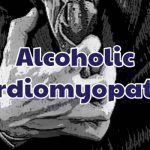 alcoholic-cardiomyopathy-1