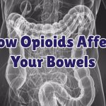 how-opioids-affect-your-bowels
